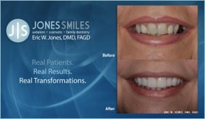 dental whitening before & after
