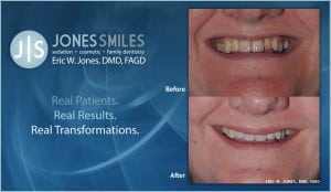 Smile Makeover- Dentist Flowery Branch, GA